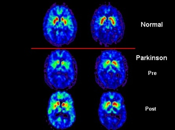Earlier Parkinson's Onset and Dystonia Symptoms Seen in GCH1 Mutations in Study